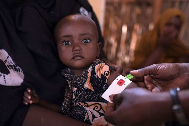 """A Trocaire staff member screens a child for malnutrition at a mobile nutrition unit in the village of Surgadud in Dollo, Gedo region in South West Somalia on Monday, February 5, 2018. """"Malnutrition cases are very high in these areas. For these people their priority changes with the priority of their animals. They keep moving looking for pasture, so for them their priority is livestock,"""" said Trocaire field coordinator Sugow Bishar Ahmed. With the support of Irish Aid, Trocaire has been able to conduct mobile nutrition screening, supplementary feeding and Outpatient Therapeutic Programs for isolated communities that lack basic medical services in South West Somalia."""